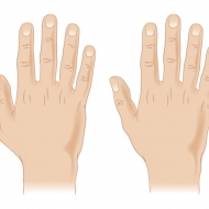 Polydactyly illustration